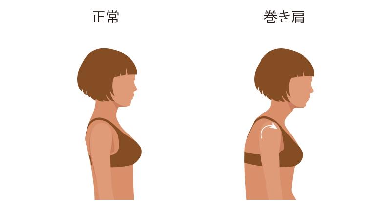 姿勢の重要性―巻き肩―