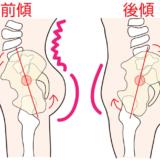 姿勢の重要性―骨盤の傾き―